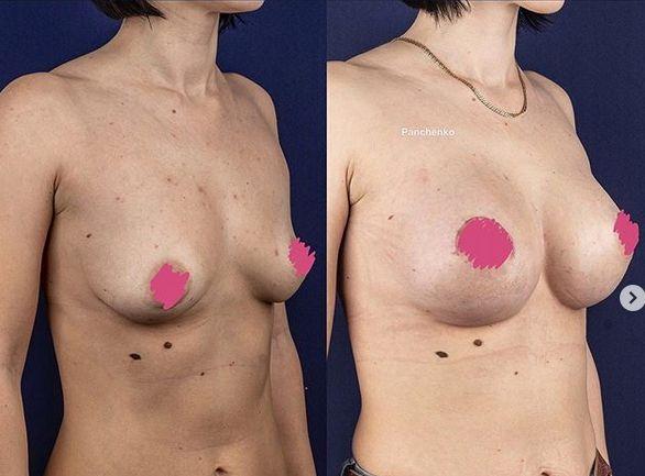 Результат маммопластики через 6 месяцев